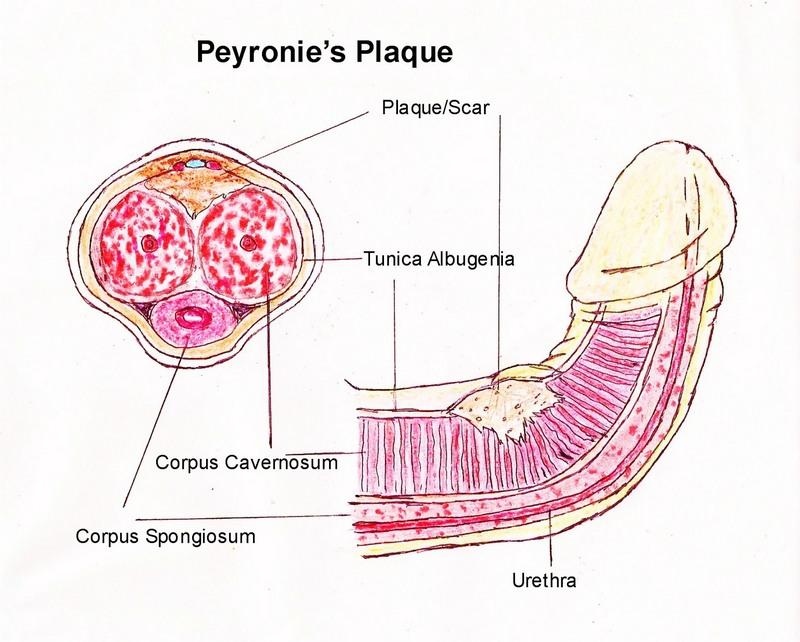 Peyronie's